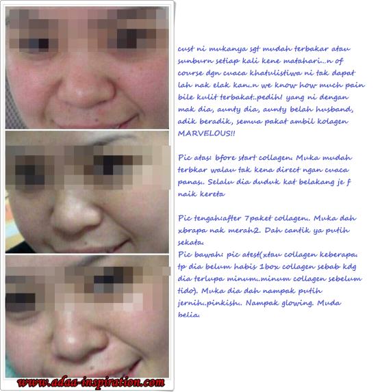 testi kolagen 6