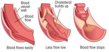 high cholesterol 1