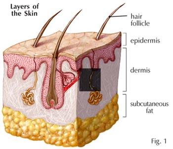 lemak bawah kulit