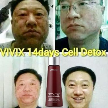 DETOX VIVIX 1
