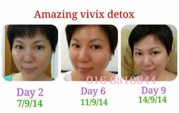 DETOX VIVIX 5
