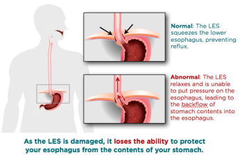 LES: LOWER ESOFAGUS SPHINCTER
